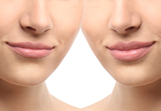 Stylage | Stylage Filler | Stylage Special Lips Formula - Botox Toronto